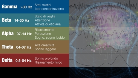 cervello-003